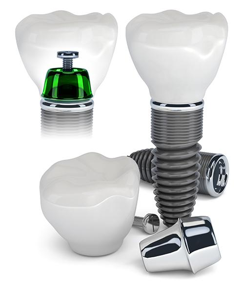 Dental Implants Advantages, Risks | Smile Design Center of Westchester