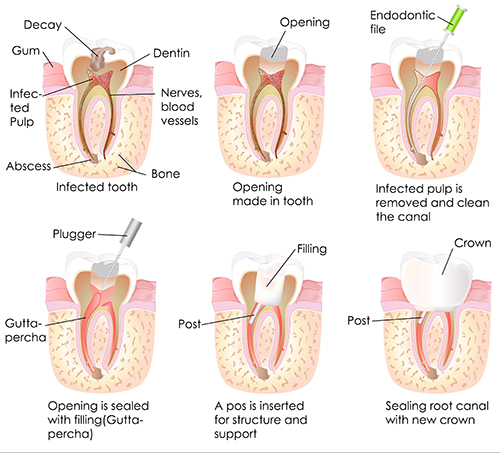 Root Canal Therapy and Treatment | Smile Design Center of Westchester